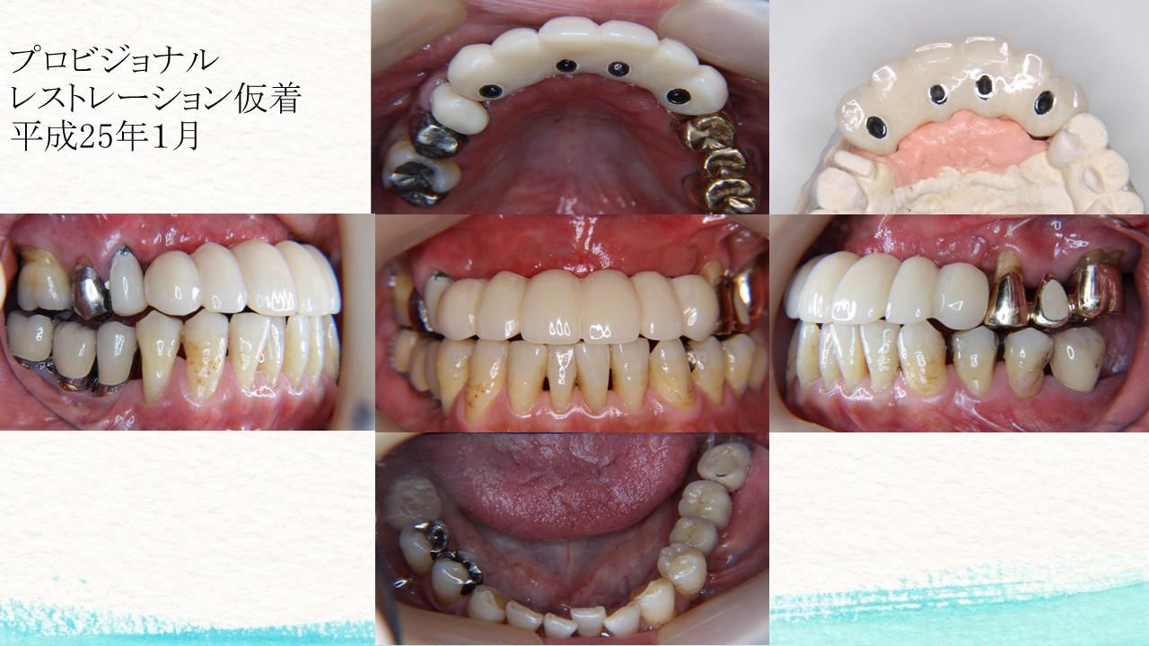 外圧遮断とGBR法を併用し上顎前歯部にインプラントを行った1症例