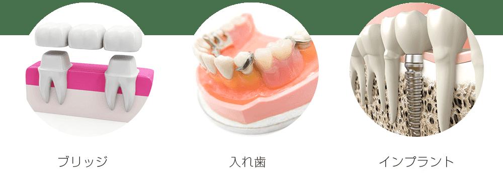原則的に抜けた歯を入れる方法は、以下の3つ