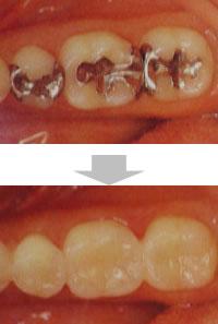 審美歯科の治療例
