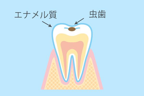 小さい虫歯治療