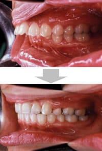 臼歯 奥歯