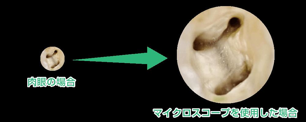 肉眼とマイクロスコープを使用した場合の比較