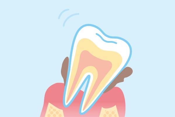 歯周病は歯を失う大きな原因