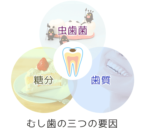 虫歯の予防について